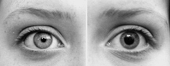 Dilated-Vs-Contracted-Pupils